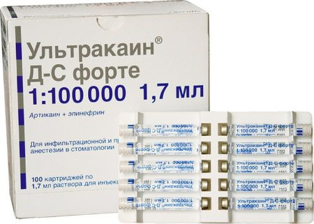 Ультракаин ДС Форте 1:100000 - Ultracaine D-S Forte (100 карпул)